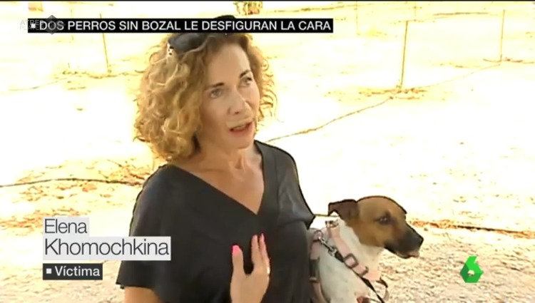 dos bull terriers atacan mujer alicante